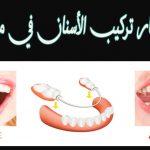 أسعار تركيب وزراعة الأسنان الثابتة والمتحركة 2020 في مصر