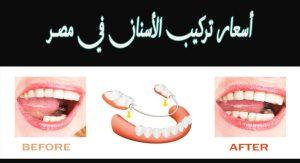 أسعار تركيب الأسنان 2021