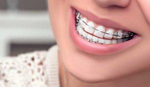 تقويم الاسنان 2021