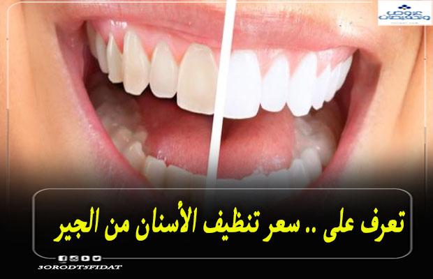 سعر تنظيف الأسنان من الجير