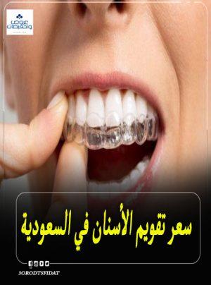 سعر تقويم الأسنان في السعودية