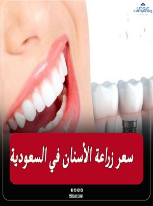 سعر زراعة الأسنان في السعودية