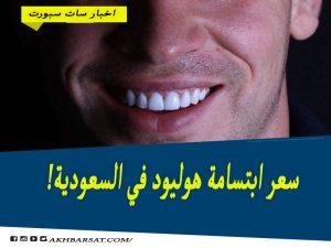 سعر ابتسامة هوليود